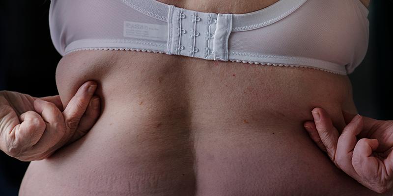 jalil-artigo-obesidade-1403.png